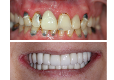 Full Arch Implant Bridge Restorations for Missing Teeth before and after