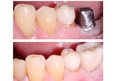 implant crowns before and after