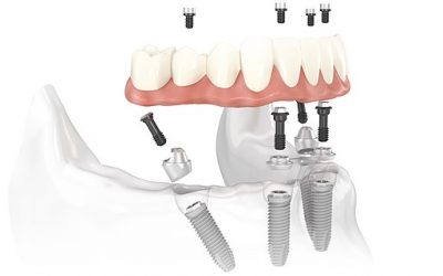 All-on-4 dental treatment offers same-day full arch replacement