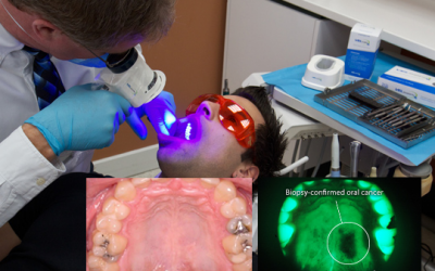 New technology helps Dr. Dennis Lucas with oral cancer screening